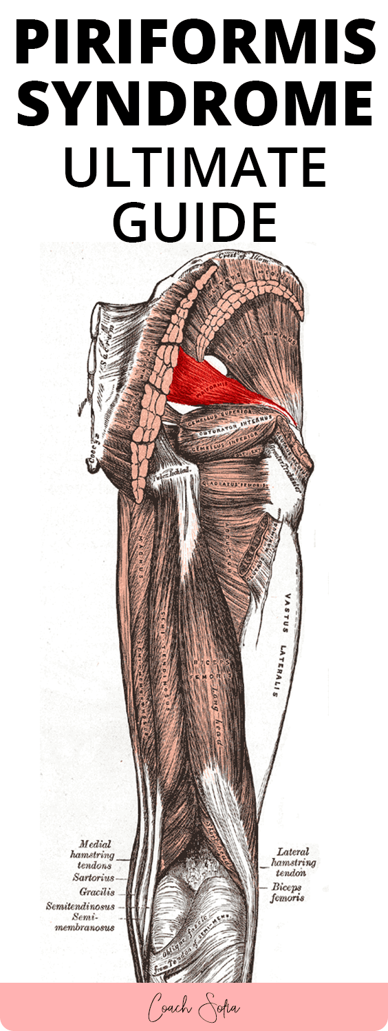 Fix piriformis syndrome quickly