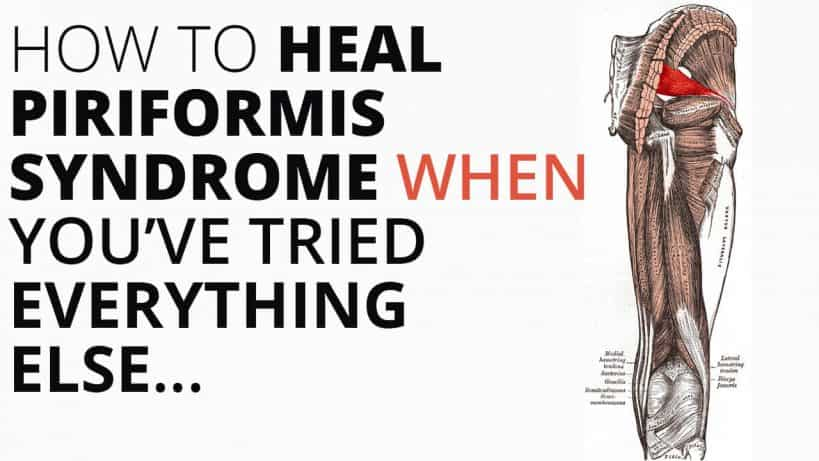 how to heal piriformis syndrome when it won't go away