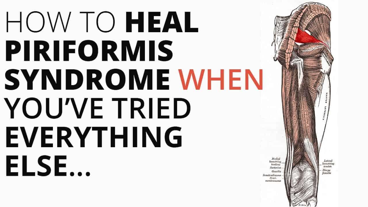 Piriformis syndrome Piriformis Syndrome