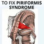 how to heal piriformis syndrome quickly with these 3 treatments