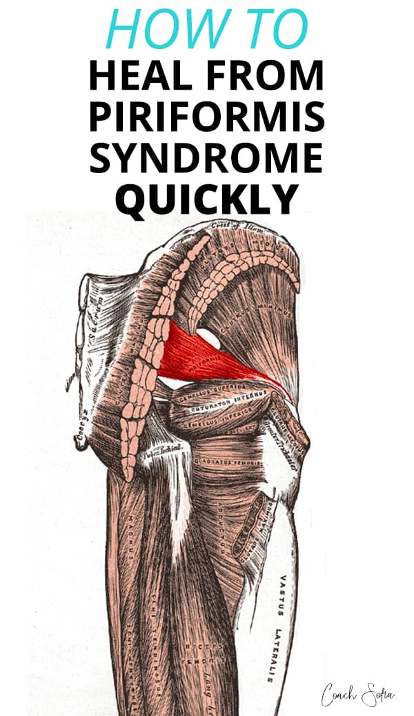 how to heal Piriformis Syndrome quickly